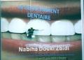 Communication par : Pr.Nabiha Douki Zebidi