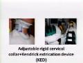 Communication Donnée par  Dr.Amin HENINE; Orthopedic A Departement Douera Hospital