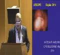 Myomectomie comment gérer l'hémorragie en per opératoire Communication présentée par Dr KHOJA