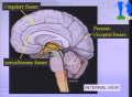 Examen morphologique d'un cerveau normal Communication présentée par Nicole Carteaux