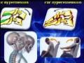 Communication Donnée par Dr R.GUERNINE; Service de Chirurgie Orthopédique Traumatologique et Réparatrice, CHU BEJAIA