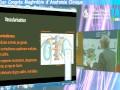 Variations de la veine surrénale principale Constatations cœlioscopiques